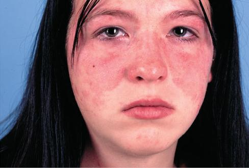 Hiv Rash Hands Medical Pictures Info ...