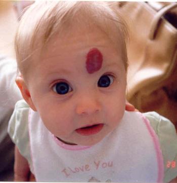 Capillary hemangioma - Wikipedia