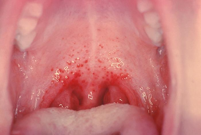 from Ameer pictures of strep throat in adults
