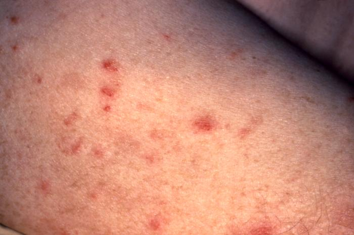 Early Stages of Scabies Photos http://medicalpicturesinfo.com/syphilis-pictures/