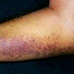 Syphilis Rash