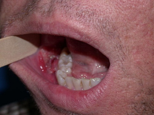 sore throat cancer
