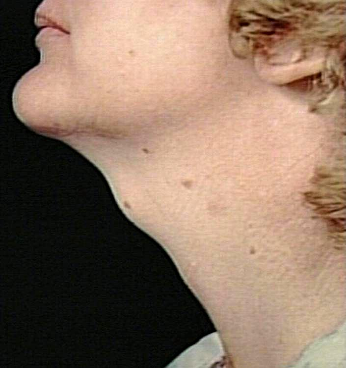 medical pictures info  u2013 thyroglossal duct cyst