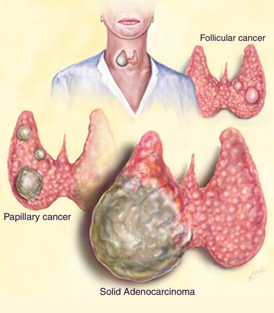 thyroid cancer Anaplastic thyroid cancer is one of the fastest growing and most aggressive of all cancers it is also known as undifferentiated thyroid cancer because the cells do not look or behave like typical thyroid cells.