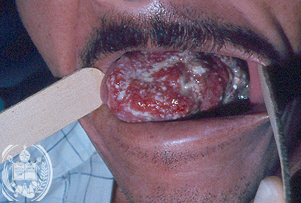 Surgery beats chemotherapy for tongue cancer