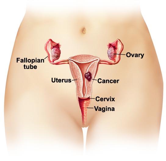 escort til par prolaps af uterus