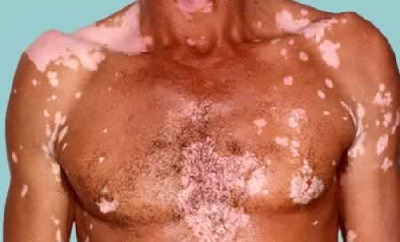 how to clear a heat rash on males geniti