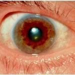Wilsons Disease