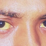 Yellow Sclera