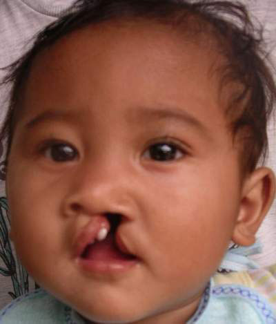 an in depth look at the cleft lip and plate facial defects With these defects cleft palate and cleft lip result  of cleft palate or cleft lip can look  facial malformations of the upper lip or.