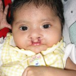 Cleft Lip picture