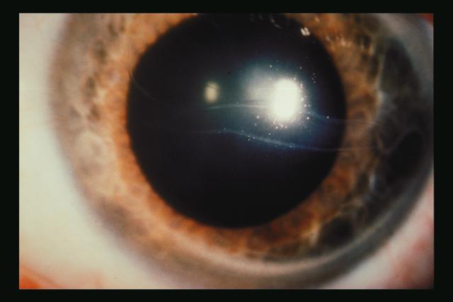 Medical Pictures Info – Congenital Glaucoma Lyme Disease Symptoms Rash