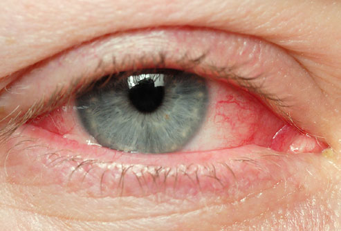 medical pictures info – conjunctivitis