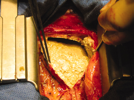 medical pictures info � constrictive pericarditis