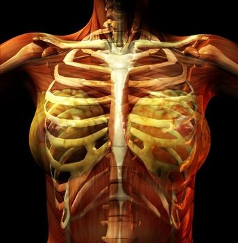 Costochondritis on tietze syndrome symptoms