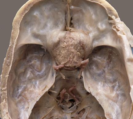 Medical Pictures Info – Craniopharyngioma Lyme Disease Symptoms Rash