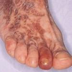 Cryoglobulinaemia