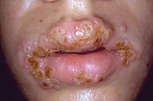 Gonorrhea Mouth