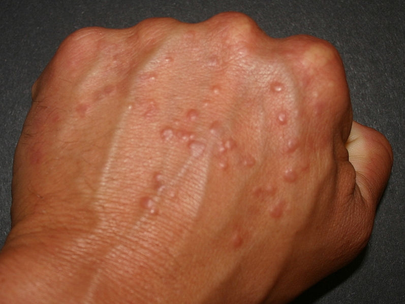 Skin Rash Bumps On Hands