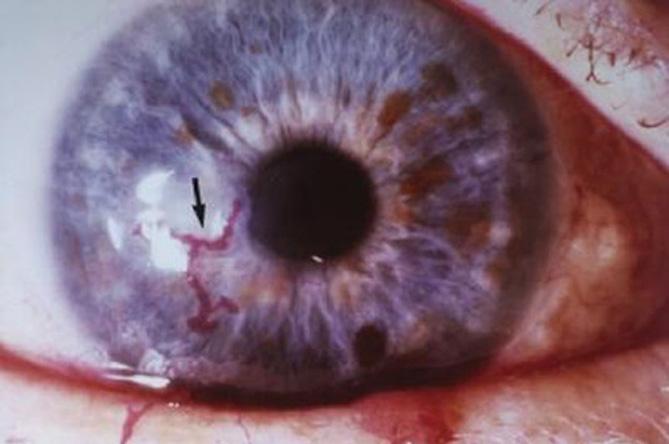 Herpes simplex Herpes zoster Porphyria cutanea tarda 3