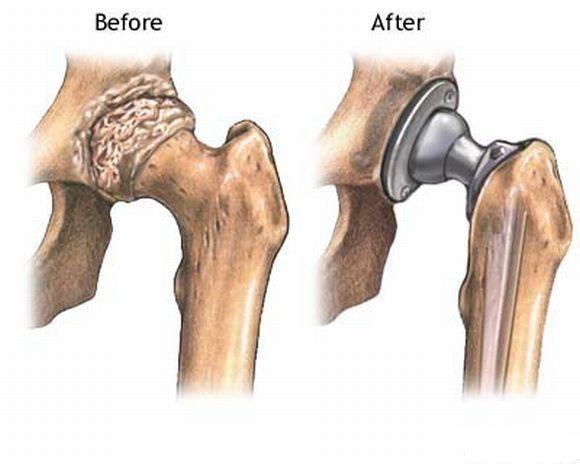Medical Pictures Info – Hip Bone