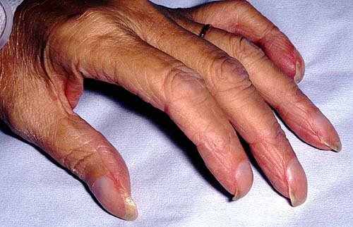обрезанный член на руках фото
