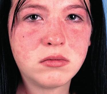 Facial Lupus Rash