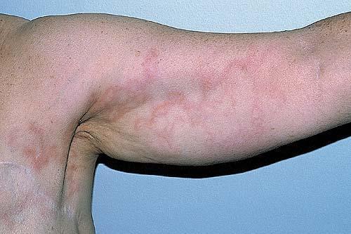 medical pictures info – lymphangitis, Skeleton