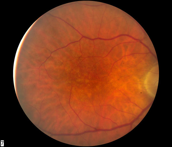 macular dystrophy retina - photo #39