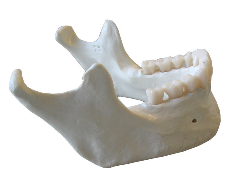 Medical Pictures Info     Mandible