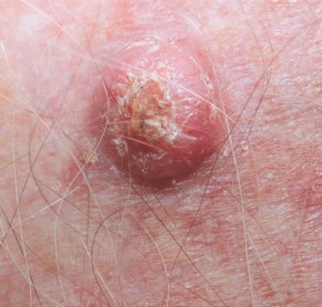Medical Pictures Info Melanoma Skin Cancer