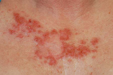 Medical Pictures Info Melanoma Skin Cancer