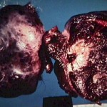 Ovarian Dermoid Cyst