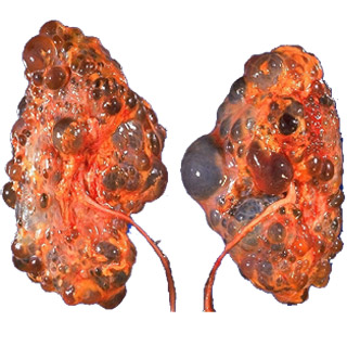 Polycystic Kidney Disease Medical Pictures Info ...