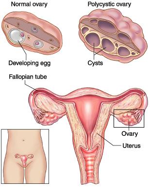 testosterone women dosage