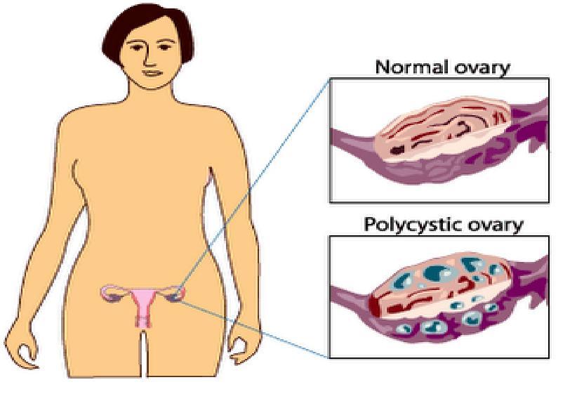 wiki polycystic ovary syndrome