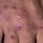 Porphyria Cutanea Tarda
