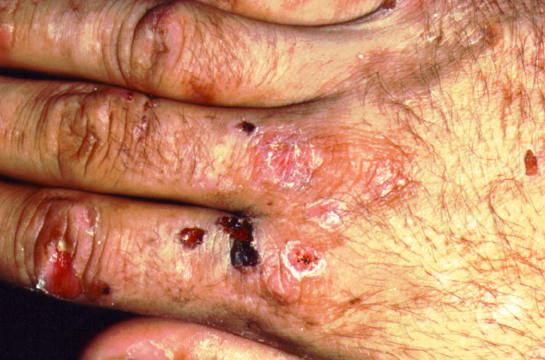 Porphyria Cutanea Tarda - Pictures, Diagnosis, Causes ...