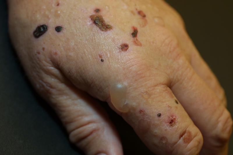 Herpes simplex Herpes zoster Porphyria cutanea tarda 1