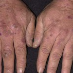 Porphyria Picture