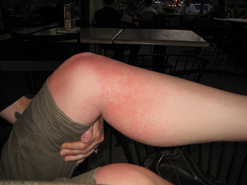Heat Rash/Prickly Heat - LiveLife Pharmacy