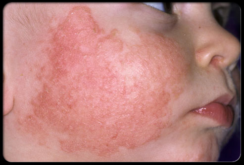 How To Treat Contact Dermatitis On Face Naturally