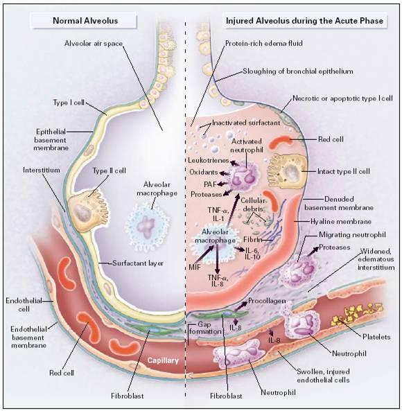 pulse steroids sepsis
