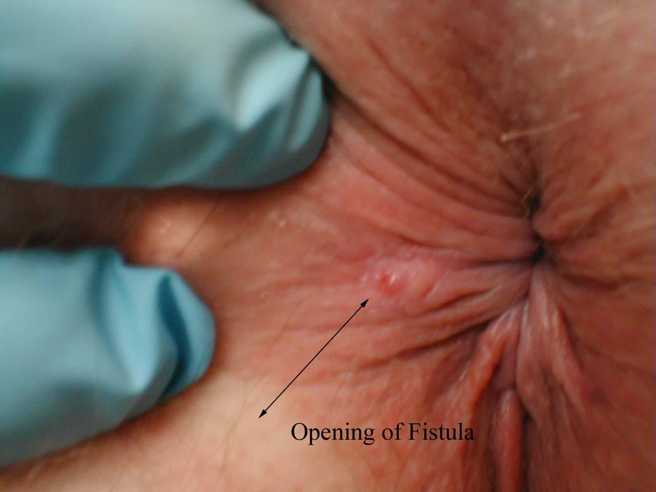 Anal fistula treatment randwick nsw
