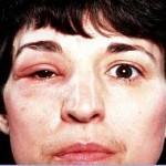 Angioneurotic Edema