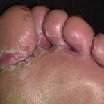 Athlete's Feet