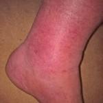 Cellulitis Foot