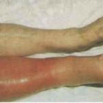 Deep Vein Thrombosis