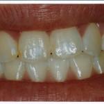Dental Fluorosis