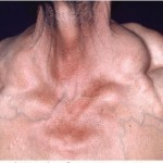 Dercums Disease